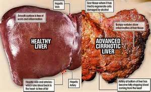 how does alcohol affect the liver picture 3