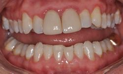 fort worth teeth whitening picture 14