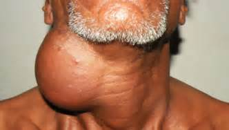 boils and cysts picture 2
