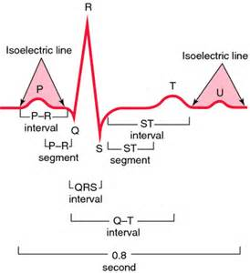 electrocardiograms directly measure action potentials in individual picture 14