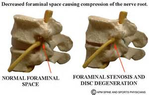 degenerative uncovetebral joint changes picture 9