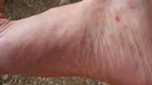 dry ed itchy split foot skin picture 6