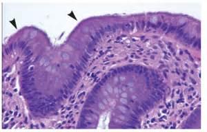 colon biopsy picture 15