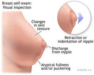 liver pain under left breast picture 2