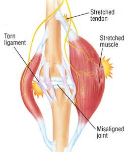 healing a strained lower back muscle picture 5