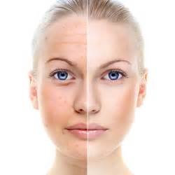 ageing botox treatment picture 6