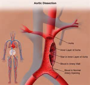 gastrointestinal bleeding ociated with aortic aneurysm picture 14