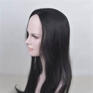 hair loss in women icd-9 code picture 10