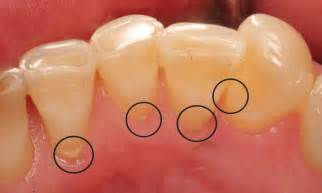 stop tartar and plaque build up on teeth, picture 10
