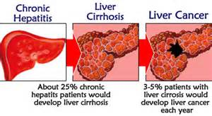 liver cancer causes picture 1