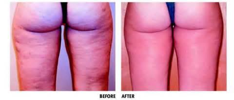 lipo dissolve cellulite picture 3
