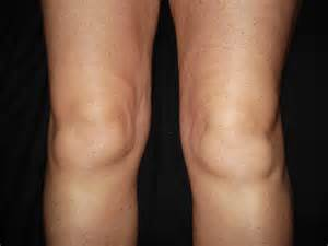 knee swelling joint pain stiffness picture 7