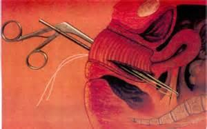 bladder prolapse surgery picture 11