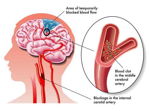 blood clot in head symptoms picture 2