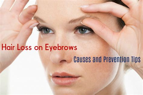 losing hair eyebrows picture 7