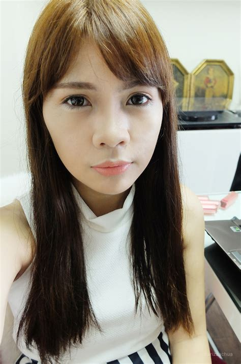 rosy l for acne picture 9