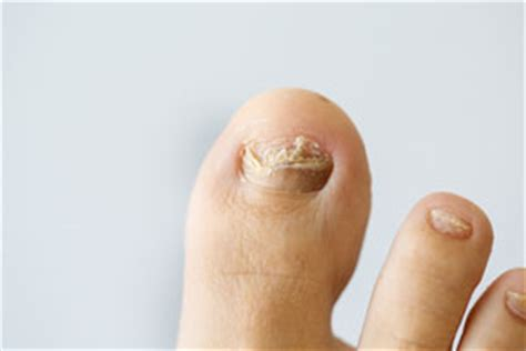 laser for nail fungus chicago, il picture 4