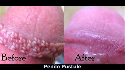herpes penis pump picture 10