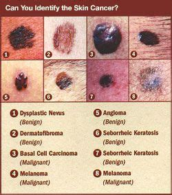 is there a natural cure for basal cell skin cancer picture 5