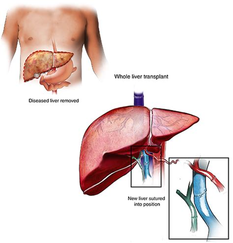 where is the most liver transplants done picture 2