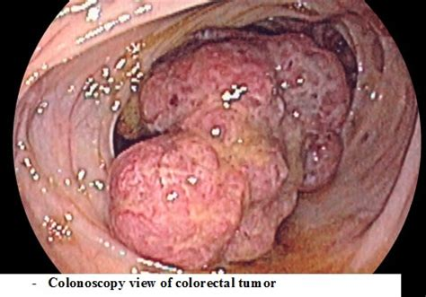 advanced colon cancer picture 14