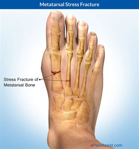 most common injuries to fifth metatarsal phalangeal joint picture 4