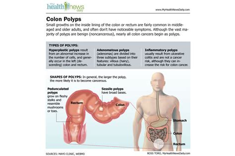 Death, illness, or physical damages due to colon picture 1