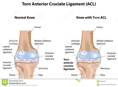 anatomy of a knee joint pictures and labels picture 9