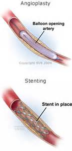 skin boils and artery stents picture 9