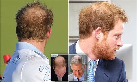 new breakthrough medical world 2014 hairloss , balding picture 8