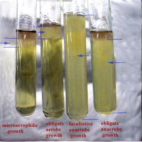 oxygen and the growth of bacteria lab picture 6