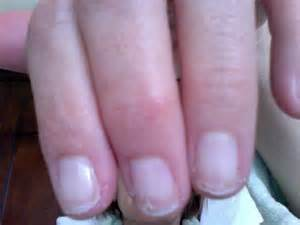 pictures ol toe fungus picture 15