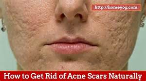 how to get rid of acne spots picture 2