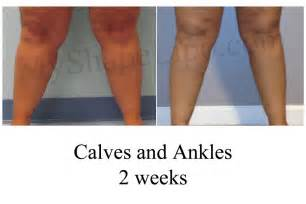 fat transfer to legs picture 17