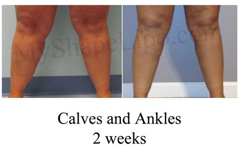 fat transfer to legs picture 6
