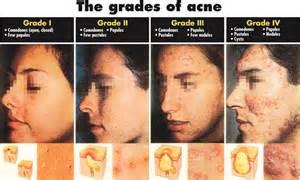 non cystic acne picture 5