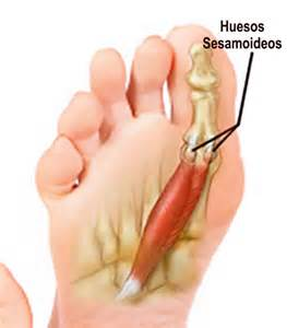big toe joint pain picture 3