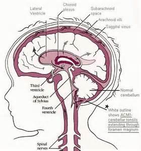 low blood pressure brain aneurysm picture 9