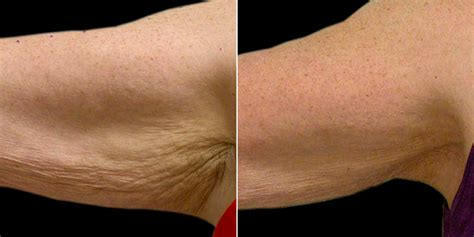 skin tightening flaxseed oil picture 14