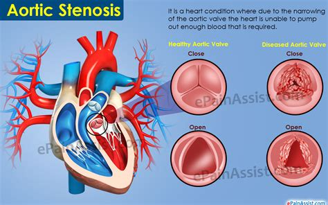 Aortic stenosis blood pressure readings picture 7