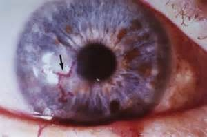 eye herpes photo picture 1
