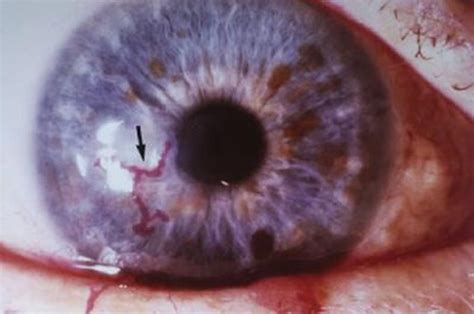 corneal herpes picture 2