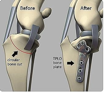 knee joint pain management picture 9