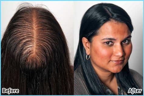 thinning hair women picture 2
