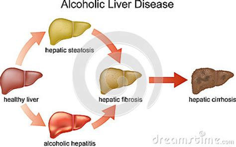 elevated liver enzymes webmd stomach flu picture 11