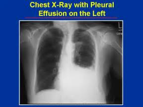 natural care of pleural eff picture 18