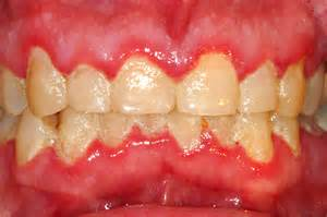 childrens braces for teeth picture 19
