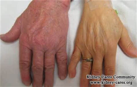 skin color in end stage renal disease picture 4