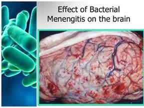 Bacterial meningitis penetrated brain consequences picture 9