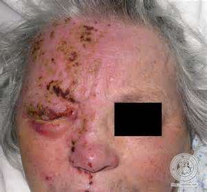 herpes in the face picture 9